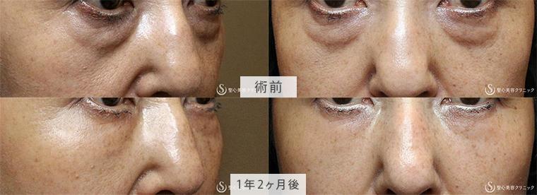 プレミアムPRP皮膚再生療法