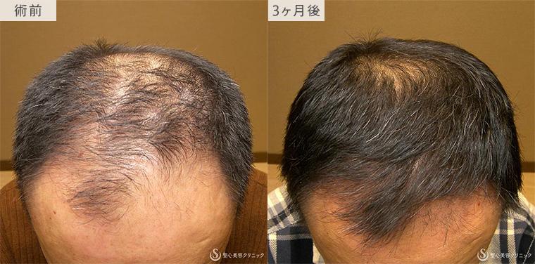 プレミアム・グロースファクター毛髪再生療法