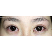 症例写真 術後 二重術・目頭切開・涙袋・眼瞼下垂