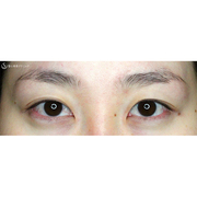 症例写真 術前 二重術・目頭切開・涙袋・眼瞼下垂