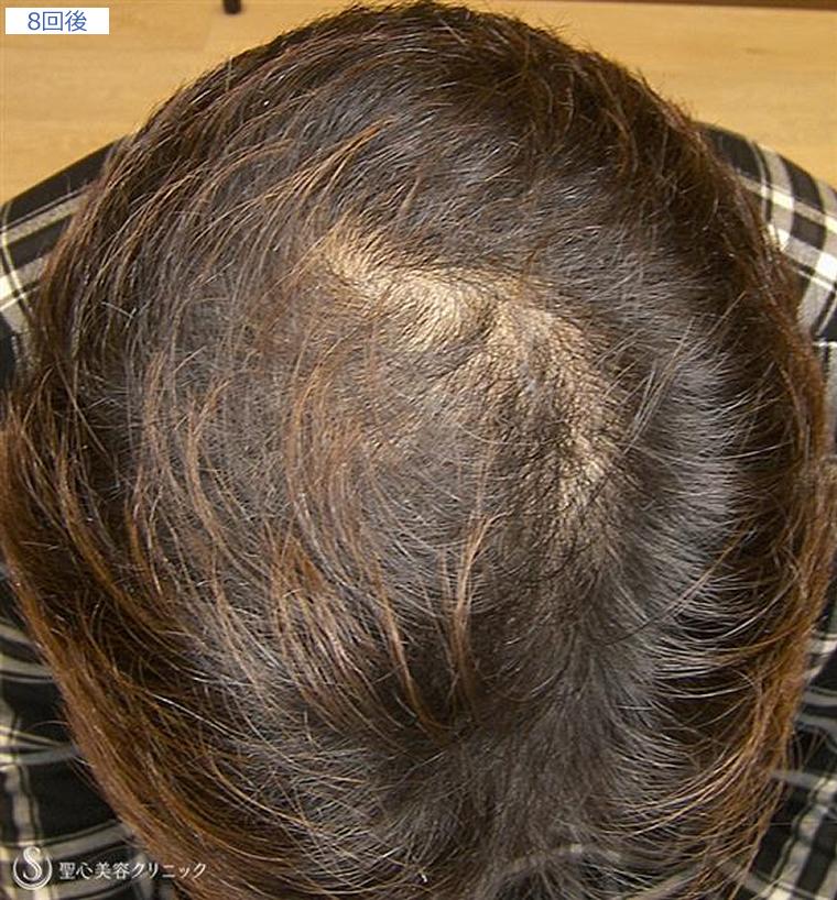 症例写真 毛髪再生療法