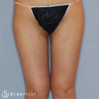 症例写真 術後 ベイザーリポ2.2脂肪吸引 下半身全体