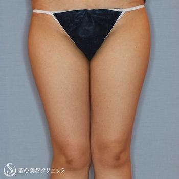 症例写真 術前 ベイザーリポ2.2脂肪吸引 下半身全体