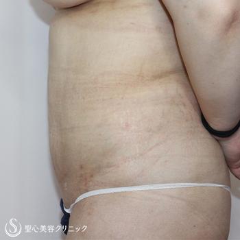 症例写真 術後 ベイザーリポ2.2脂肪吸引 腹部