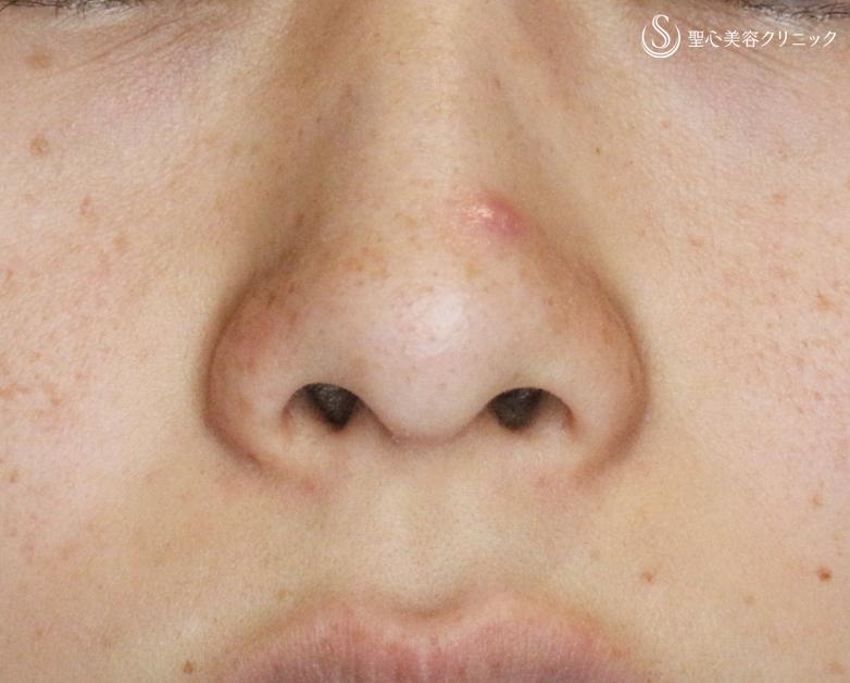 穴 痛い の 鼻