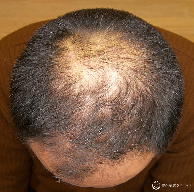症例写真 術前 プレミアム・グロースファクター毛髪再生療法+外用と内服薬