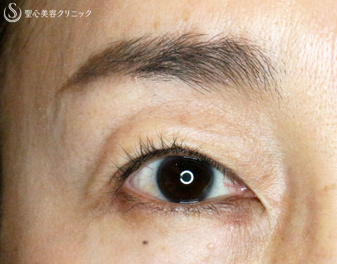 症例写真 術後 切らない眼瞼下垂+α法