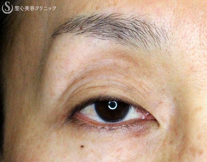 症例写真 術前 切らない眼瞼下垂+α法